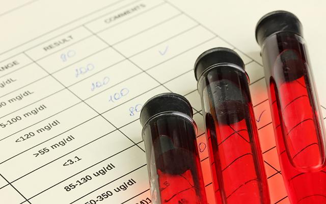 ВИЧ-инфицированный врач свёл счёты с жизнью