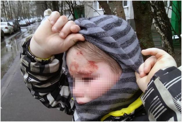 В Москве семилетние двойняшки сбежали на улицу из-за побоев матерью