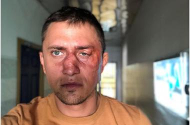 Знаменитый актёр потерял лицо на неласковом калининградском асфальте